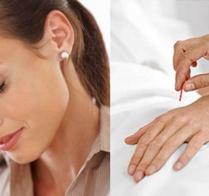Gratuita de acupuntura para el dolor de cabeza - pic0