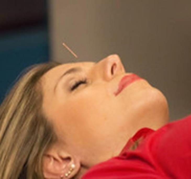 OFERTA: 5 sesiones acupuntura MyT- Pedir cita - pic0